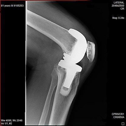 erstatning etter kneproteseoperasjoner